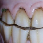 What is Good Dental Care Really Worth to you AND your Horse?